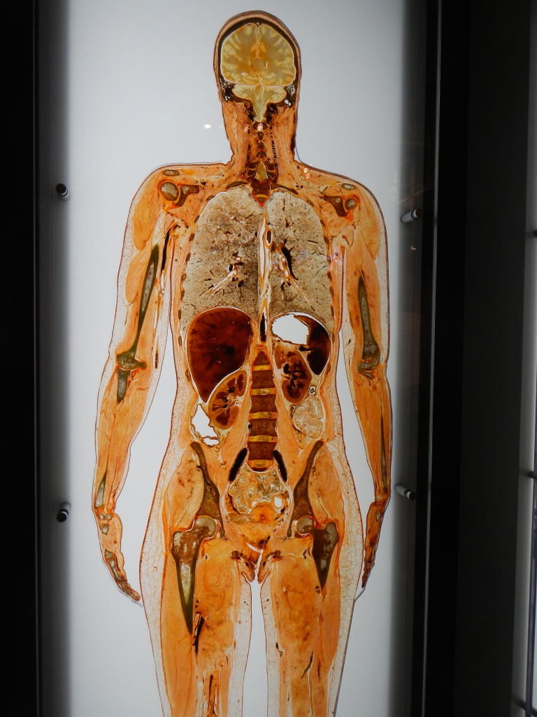 Freeze Dried Slice of a Human Female